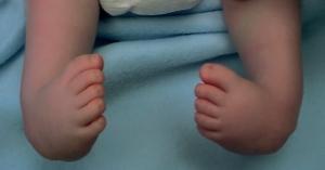 Congenital Club Foot Image