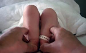 DDH Congenital Hip Dysplasia Diagnosis