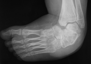 الأشعة السينية قبل العملية في حَنَف القدم