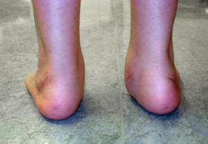 Flat Feet Detail Back prof. Portinaro