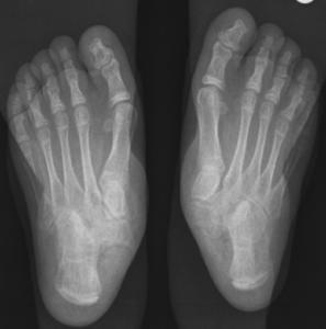 صورة بالأشعة السينية لقدم مسطَّحة يسار يمين