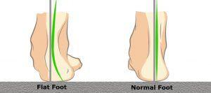 Flat foot vs Normal foot mage