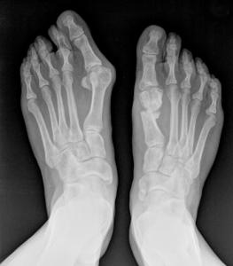 الأشعة السينية قبل العمليات للوكعة (إبهام القدم الأَرْوَح)