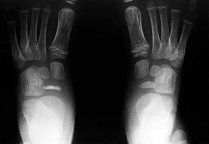 صورة بالأشعة السينية لقدم مصابة بداء كوهلر