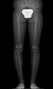 الصورة الشعاعية لتفاوت طول الساقين بعد الجراحة