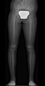 الصورة الشعاعية لتفاوت طول الساقين قبل العملية