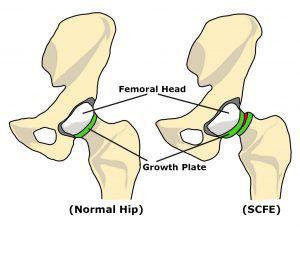 صورة انزلاق مشاشة رأس الفخذ (SCFE)