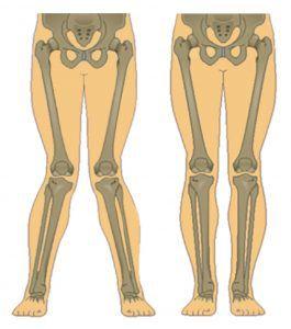صورة الركبة الرَّوحاء مقابل الركبة الطبيعية